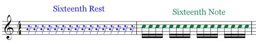 Musical Rest - Comparison - SR - SN